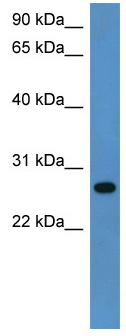 Western blot - CYB5R2  antibody (ab112161)