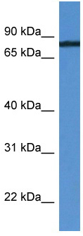 Western blot - HHIPL1 antibody (ab112180)
