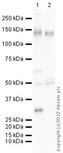 Western blot - Anti-Integrin alpha 5 antibody (ab112183)