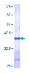 SDS-PAGE - CD166 protein (ab112249)