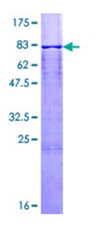 SDS-PAGE - Calsequestrin protein (ab112257)