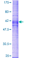 SDS-PAGE - CX3CR1 protein (ab112276)
