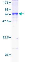 SDS-PAGE - DAZL protein (ab112279)