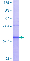 SDS-PAGE - TLR2 protein (ab112361)