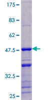 SDS-PAGE - DDX17 protein (ab112392)