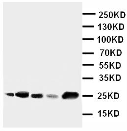 Western blot - IGFBP6 antibody (ab112491)