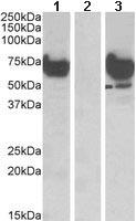 Western blot - EPM2AIP1 antibody (ab112495)