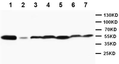 Western blot - JNK1+JNK2 antibody (ab112501)