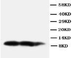 Western blot - Anti-BCA1 antibody (ab112521)