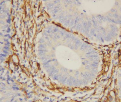 Immunohistochemistry (Formalin/PFA-fixed paraffin-embedded sections) - Anti-Galectin 1 antibody (ab112525)