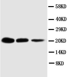 Western blot - TNFRSF1A antibody (ab112535)