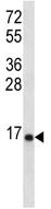 Western blot - RPL23 antibody (ab112587)