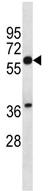 Western blot - Squalene Epoxidase  antibody (ab112960)
