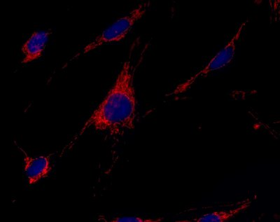 Immunocytochemistry/ Immunofluorescence - Anti-GCDH antibody [3E9BA3BF5] (ab112998)