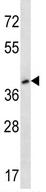 Western blot - 5HT4 Receptor antibody (ab113004)