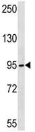 Western blot - TUBGCP2 antibody (ab113036)
