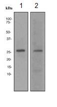 Western blot - p27 KIP 1 antibody [EPFHCR16a] (ab113075)