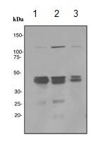 Western blot - PHD1/prolyl hydroxylase antibody [EPR2746] (ab113077)