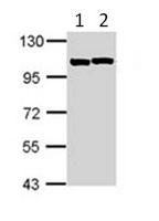 Western blot - Sarcomeric Alpha Actinin antibody (ab113086)