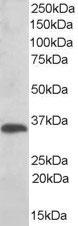 Western blot - TXNDC antibody (ab113088)