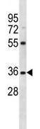 Western blot - OR5AN1 antibody (ab113094)