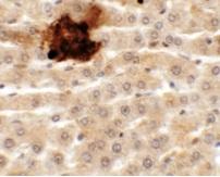 Immunocytochemistry - Anti-SYTL5 antibody (ab113098)