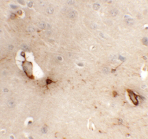 Immunohistochemistry - Anti-TMEM204 antibody (ab113102)