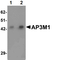 Western blot - Anti-AP3M1 antibody (ab113104)