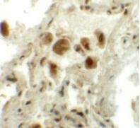 Immunocytochemistry - Anti-RASSF10 antibody (ab113105)