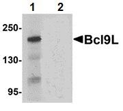 Western blot - Anti-BCL9L antibody (ab113110)