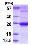 SDS-PAGE - ARL15 protein (ab113118)