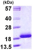 SDS-PAGE - TNNC1 protein (ab113126)