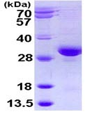 SDS-PAGE - RAB32 protein (ab113131)