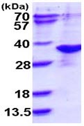SDS-PAGE - ARD1A protein (ab113135)