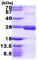 SDS-PAGE - RGS5 protein (ab113146)