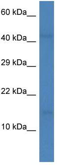 Western blot - Anti-LEC antibody (ab113220)