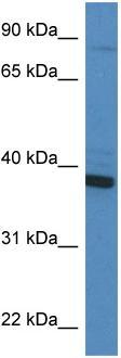 Western blot - CYB5R3 antibody (ab113222)