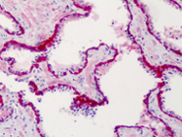 Immunohistochemistry (Formalin/PFA-fixed paraffin-embedded sections) - SLFN12 antibody (ab113238)