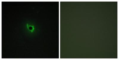 Immunocytochemistry/ Immunofluorescence - Eph receptor A6 antibody (ab113239)