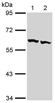 Western blot - TCP1 beta antibody (ab113242)