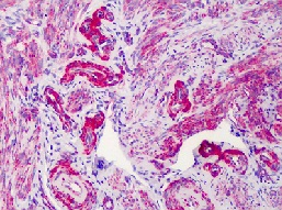 Immunohistochemistry (Formalin/PFA-fixed paraffin-embedded sections) - SLC5A3 antibody (ab113245)