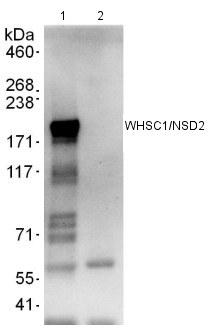Immunoprecipitation - WHSC1/NSD2 antibody (ab113258)