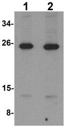 Western blot - Anti-LIF antibody (ab113262)