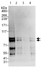 Western blot - MARK2 antibody (ab113284)