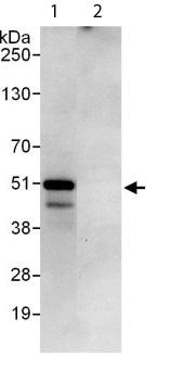 Immunoprecipitation - PEX14 antibody (ab113286)