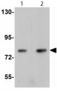 Western blot - Apc5 antibody (ab113359)
