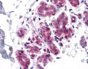 Immunohistochemistry (Formalin/PFA-fixed paraffin-embedded sections) - Cdc27 antibody (ab113361)