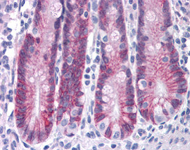 Immunohistochemistry (Formalin/PFA-fixed paraffin-embedded sections) - ASAH2 antibody (ab113369)
