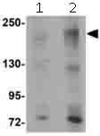 Western blot - Anti-APC2 antibody (ab113370)