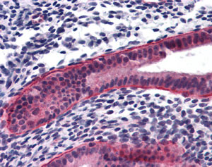 Immunohistochemistry (Formalin/PFA-fixed paraffin-embedded sections) - PTCHD2 antibody (ab113414)